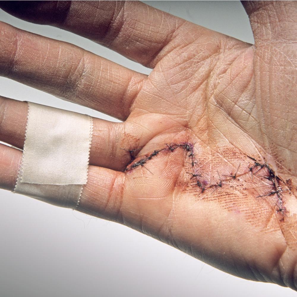 Handtherapie tijdens corona periode